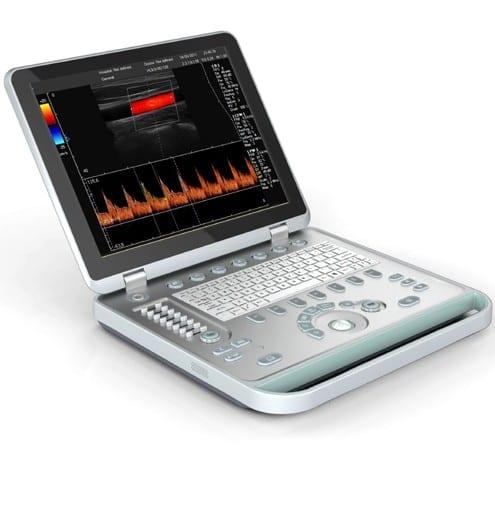 Qu'est-ce qu'un appareil à ultrasons et comment fonctionne-t-il ?