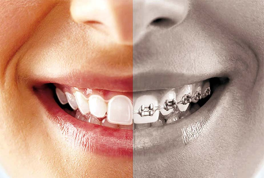 Avantages de l'orthodontie invisible