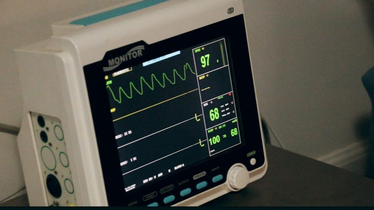 ECG – électrocardiogramme